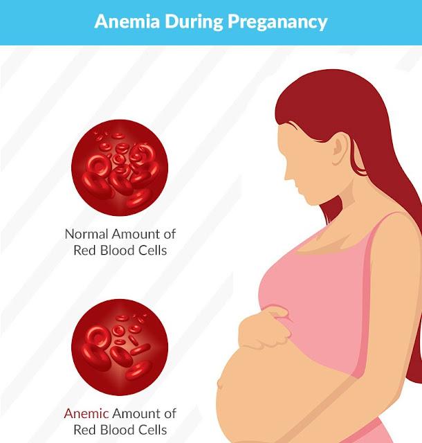 Hb rendah dan anemia ketika hamil
