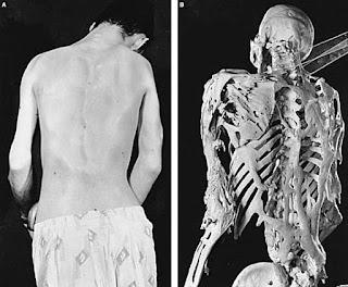 К какому врачу с заболеваниями костей
