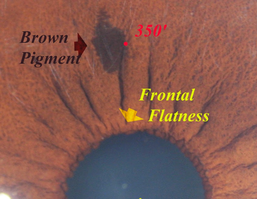 5db1dee886ae Modern   Multidimensional Iridology  Frontal Flatness