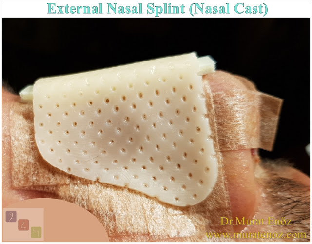 External Nasal Splint (Nasal Cast) - What Is External Nasal Splint? - Why External Nose Splints Are Used? - External Nasal Splint Prices - How to Place an External Nasal Splint? - External Thermoplastic Splints - How to Remove an External Nasal Splint? - When External Nasal Splints Are Removed After Rhinoplasty? - External Nose Splint Can Fall Off! - When Does An External Nose Splint Take Off? - When is The Bandage Removed After Nose Surgery? - How to Clean the Nasal Skin After Removing the External Nasal Splint?