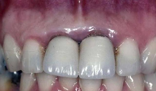 dents noires causes