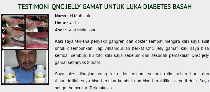 Kandungan dan Manfaat Minum Jelly Gamat QnC