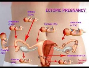 อาการ การตั้งครรภ์นอกมดลูก