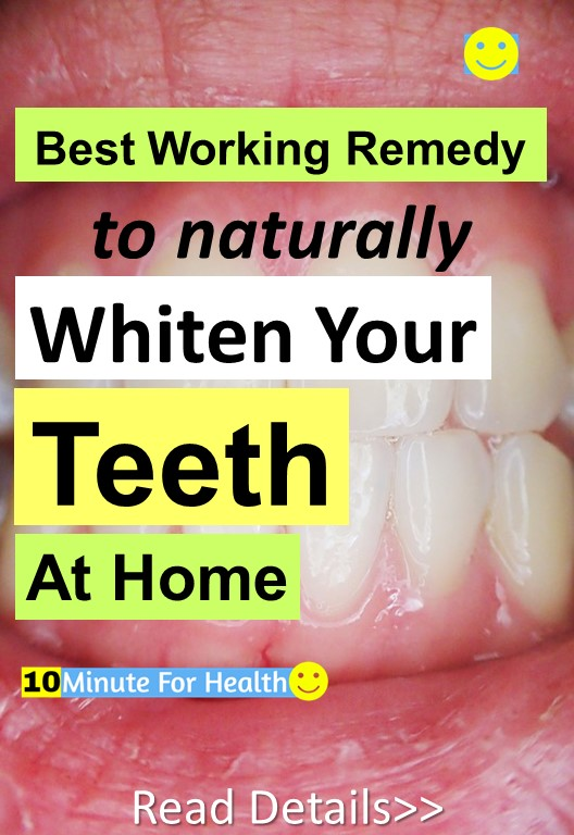 Best Remedy To Naturally Whiten Your Teeth At Home 10 Minute For