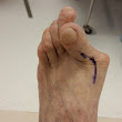 So you have a Bunion! What do you do?
