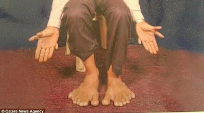 Ini dia Pria yang memiliki 28 Jari, 14 di Tangan 14 di kaki