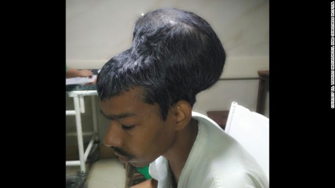 Indian doctors remove 4-pound brain tumor from man's head