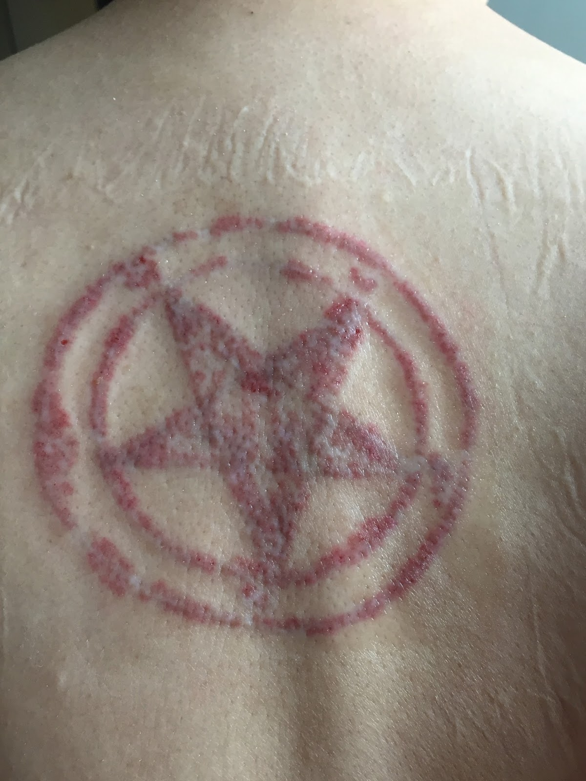 My laser tattoo removal journey and experience the last for Tattoo bandage removal