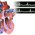 ICD 9 Code For Bradycardia