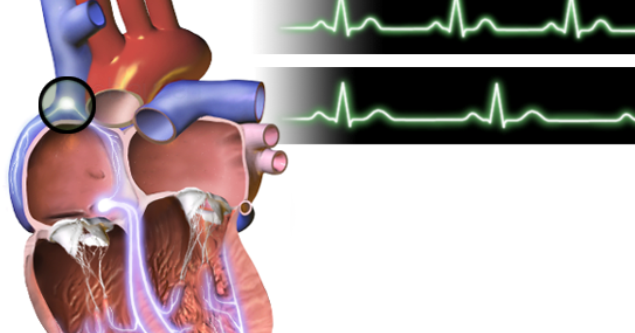 icd 9 code for bradycardia   medical billing and coding online, Muscles