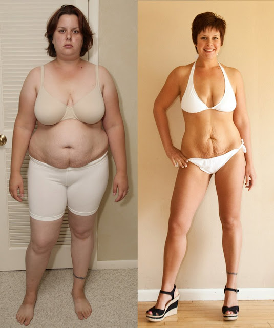 Weight loss success stories; Before and After Weight Loss Photo