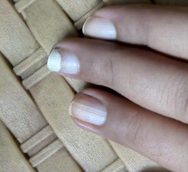 onycholysis affected nails