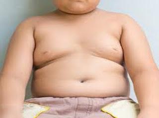 Penyebab Kelebihan Berat Badan Obesitas dan Efek Sampingnya