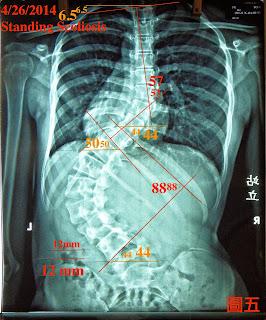 脊椎側彎, 脊椎側彎惡化, 脊椎側彎矯正, 脊椎側彎治療, 脊椎側彎復健, 脊椎側彎矯正運動, 脊椎側彎疼痛