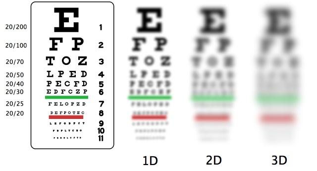 Tips yang Penting Diketahui untuk Mengobati Mata Minus