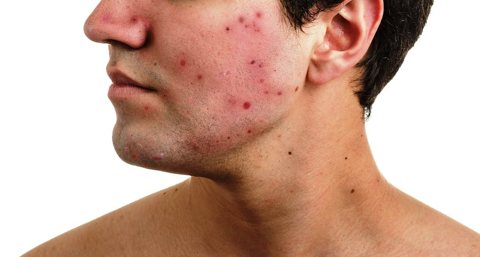 how to recognize an early acne scar