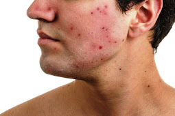 Acne Scar: How to recognize an early acne scar