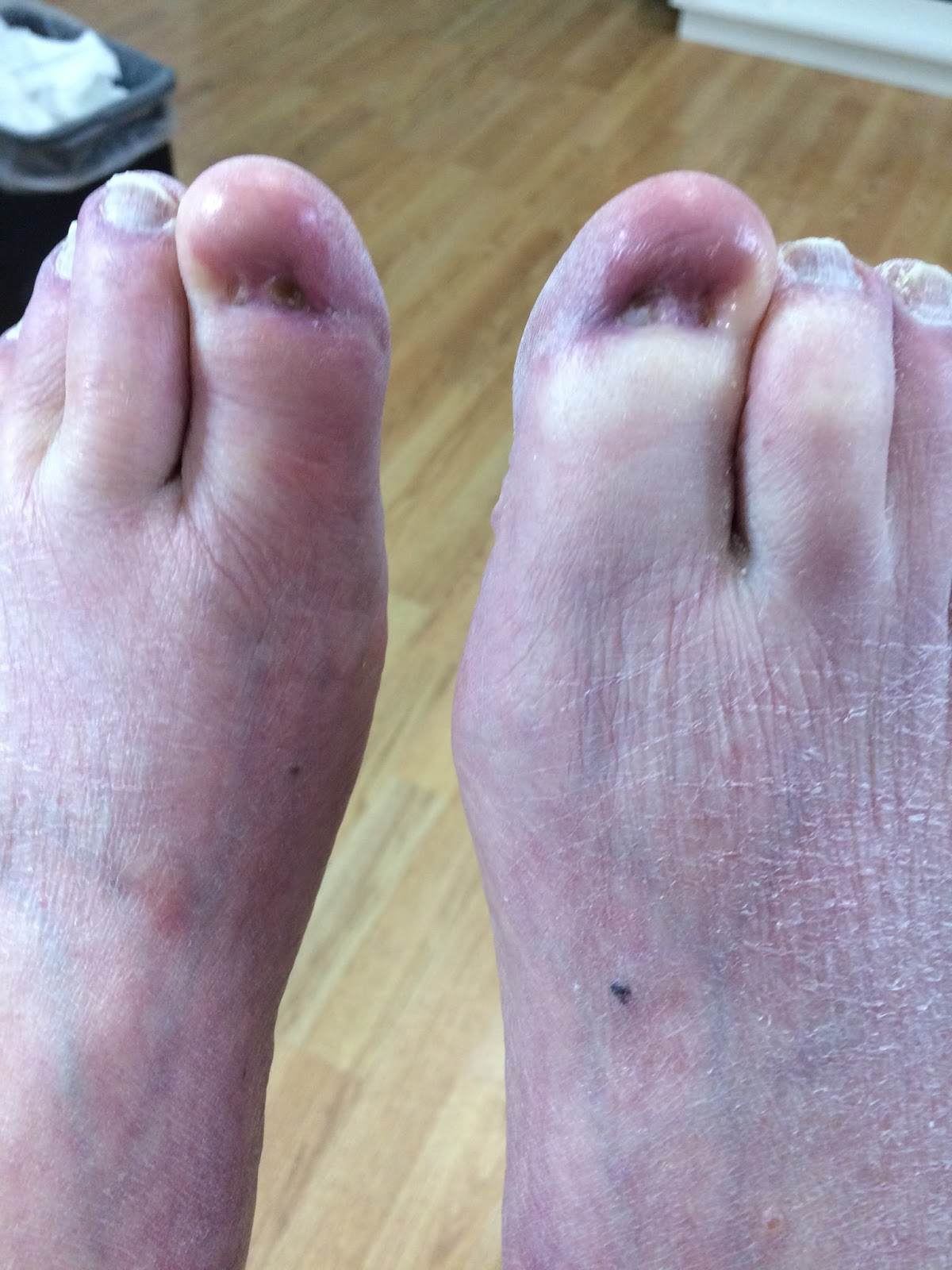 Possible fungus/Toe nail reconstruction | Lucie\'s Foot Care
