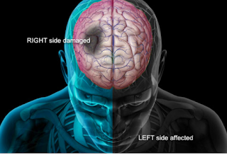 Signs of Stroke in Man And Woman