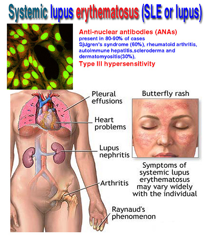 Systemic Lupus Erythematosus Sle Blue Is The Colour