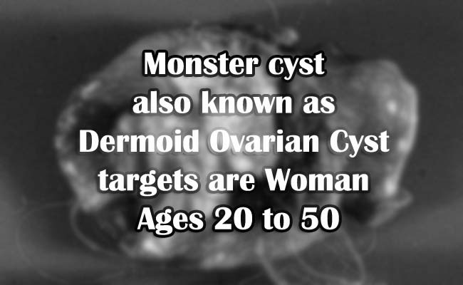 Monster cyst also known as Dermoid Ovarian Cyst targets are Woman Ages 20 to 50