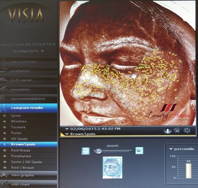 visia skin analysis uv damage on skin pigmentation