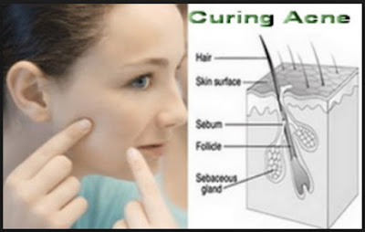 Cure Yоur Acne