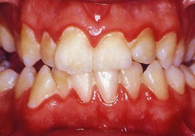 Viêm chân răng có mủ có hại thế nào?