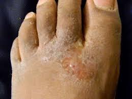 Obat eksim di kaki gatal kulit mengelupas