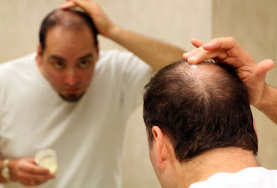 hair loss cover up