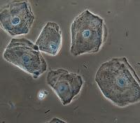 que son celulas epiteliales escamosas en la orina