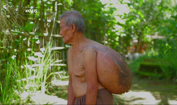 76-Year-Old Man Lives a Difficult Life with 10-kg Cyst He Carries on His Back