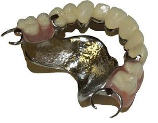 ฟันปลอมโครงโลหะ