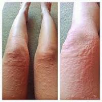 Obat Gatal Luar Tradisional Menghilangkan Alergi Kulit, obat gatal tradisional selangkangan paha karena jamur, obat gatal alergi kulit