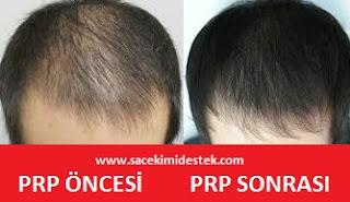 prp saç tedavisi nasıl yapılır