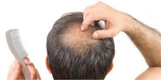 rambut rontok parah berlebihan penyebab kebotakan