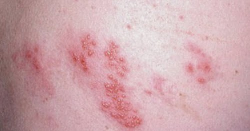 Pictures of HIV Rash | Medical Pictures