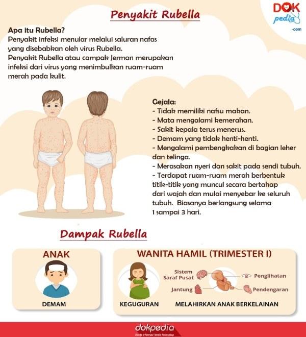 Penyakit rubella dan gejalanya