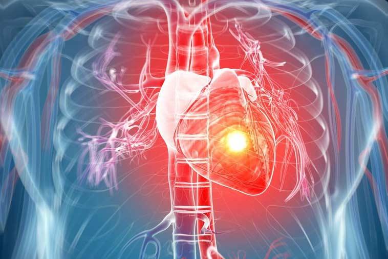 Los riesgos del ataque cardíaco silencioso.