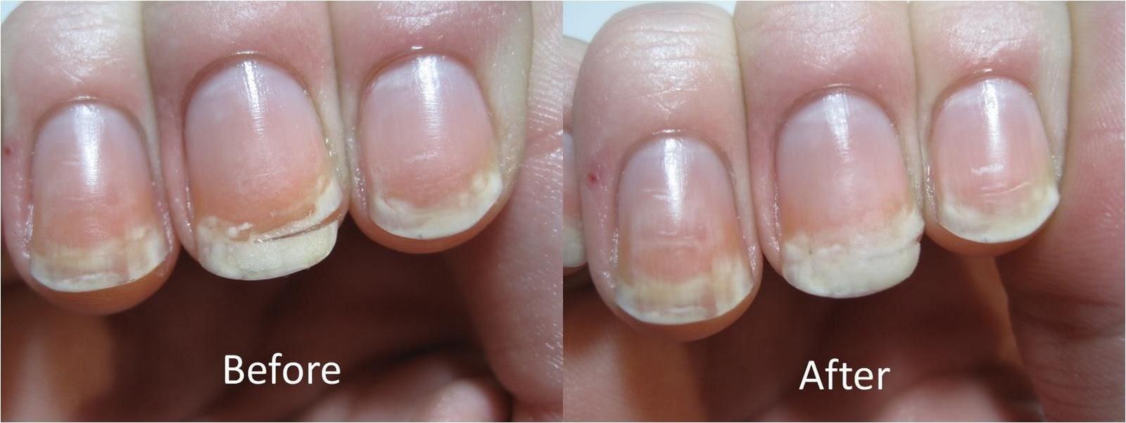 Nail Repair: Nail Repair After Biting