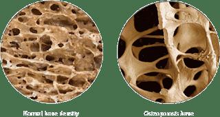 Osteoporosis; Masalah tulang; kekurangan kalsium; Kalsim terbaik; Shaklee Lawas; Shaklee Sarawak; Shaklee Lahad Datu; Shaklee Johor; Shaklee Penang;