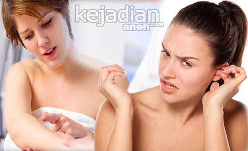 Cara Aneh Mengobati Penyakit Alergi Biar Sembuh Maksimal