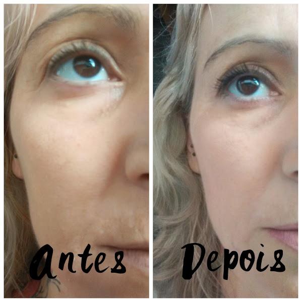 Ageless resultado antes e depois