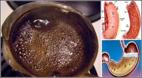 Do You Drink Coffee In The Morning On An Empty Stomach? Here are some of its bad Effects