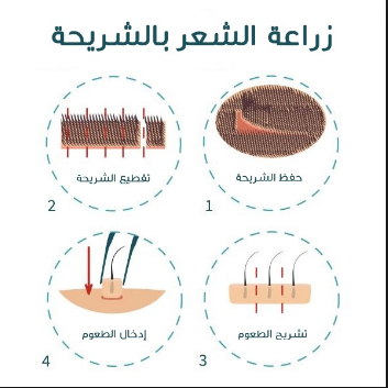 شرح مبسط لزرع الشعر بطريقة الشريحة
