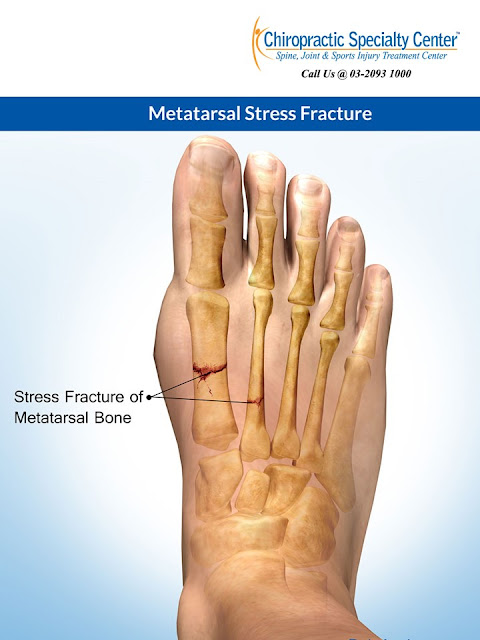 Stress fracture of the first metatarsal