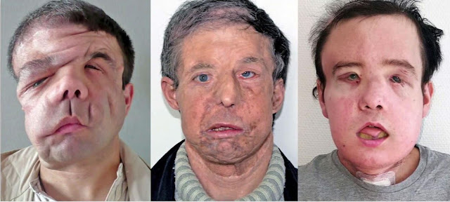 In medical 1st, man gets 2nd face transplant
