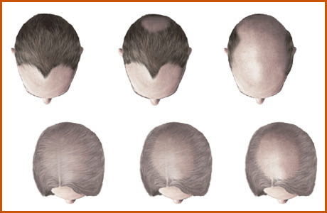Finest Hair Loss Solutions