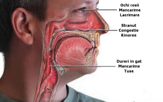 rinita poate fi vindecata eficient si prin mijloace naturale
