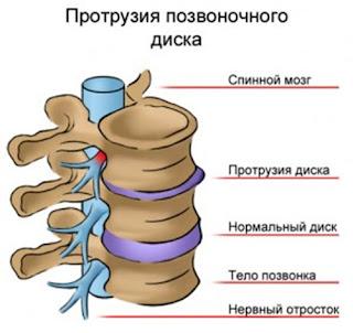 Лечение Протрузии в Одессе, Протрузия Дисков Лечение Одесса